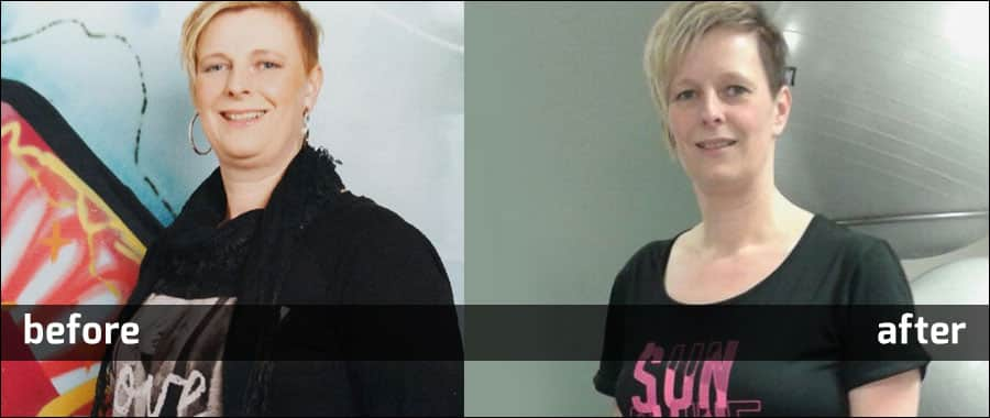Martine Horst before and after